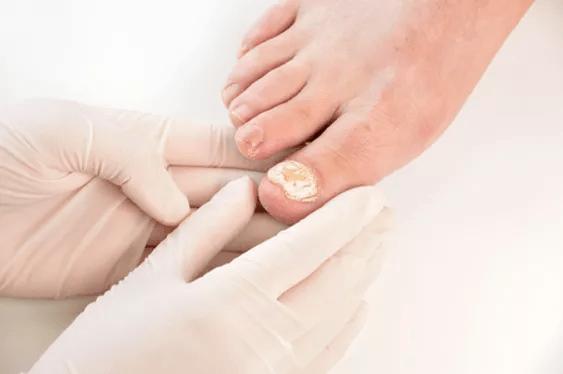 Laser for Toe Nail Fungus