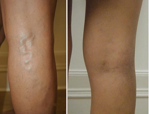 Varicrose Vein Treatment, Iebotox